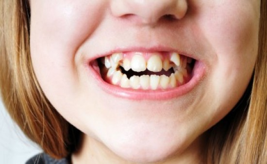 Finger habit causing tooth problem